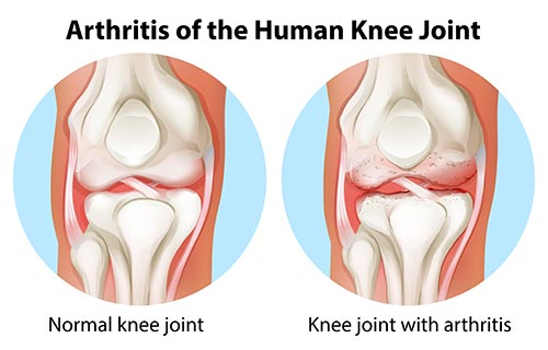 arthritis knee joint